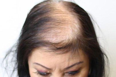 anteage_hair_before_2