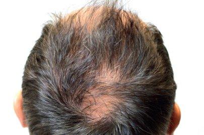 anteage_hair_before_3